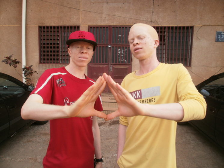 Bouma Brothers Fight Albino Stigma with Rap Music
