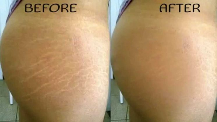 Skincare Regime: Fastest Way to Fade StretchMarks Naturally With This Miracle Oil