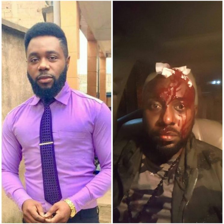 Two Cameroonian popular male actors got into a fight after an argument . Jeff/Lynno