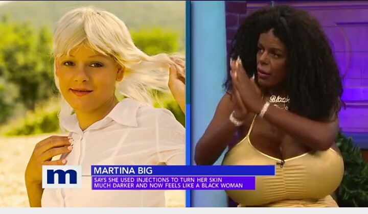 "Watch Video of a ""white ""lady who did plastic surgery and became ""Black""….."