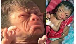 Images: Woman gives birth to a baby who looks like an old grand father.