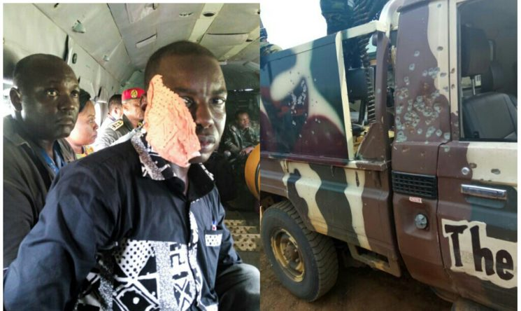 Cameroon Tribune Journalist wounded during an attack on the defence minister's convoy in Kumba.